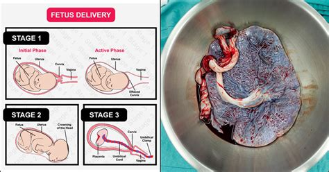 Retained Placenta: Causes, Symptoms, And Treatment