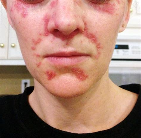 Perioral Dermatitis - Withdrawals from Corticosteroid